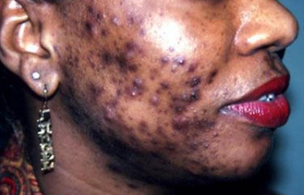 """Santé : Les produits cosmétiques """"ruinent"""" les Sénégalaises"""