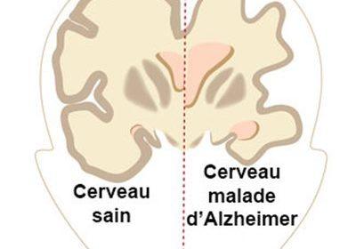 Maladie d'Alzheimer : les premiers signes qui doivent alerter
